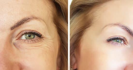 CBD Oils Reduce Wrinkles